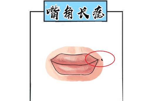 男人口舌痣_男人下巴有个坑面相学 下巴有竖沟的男人面相