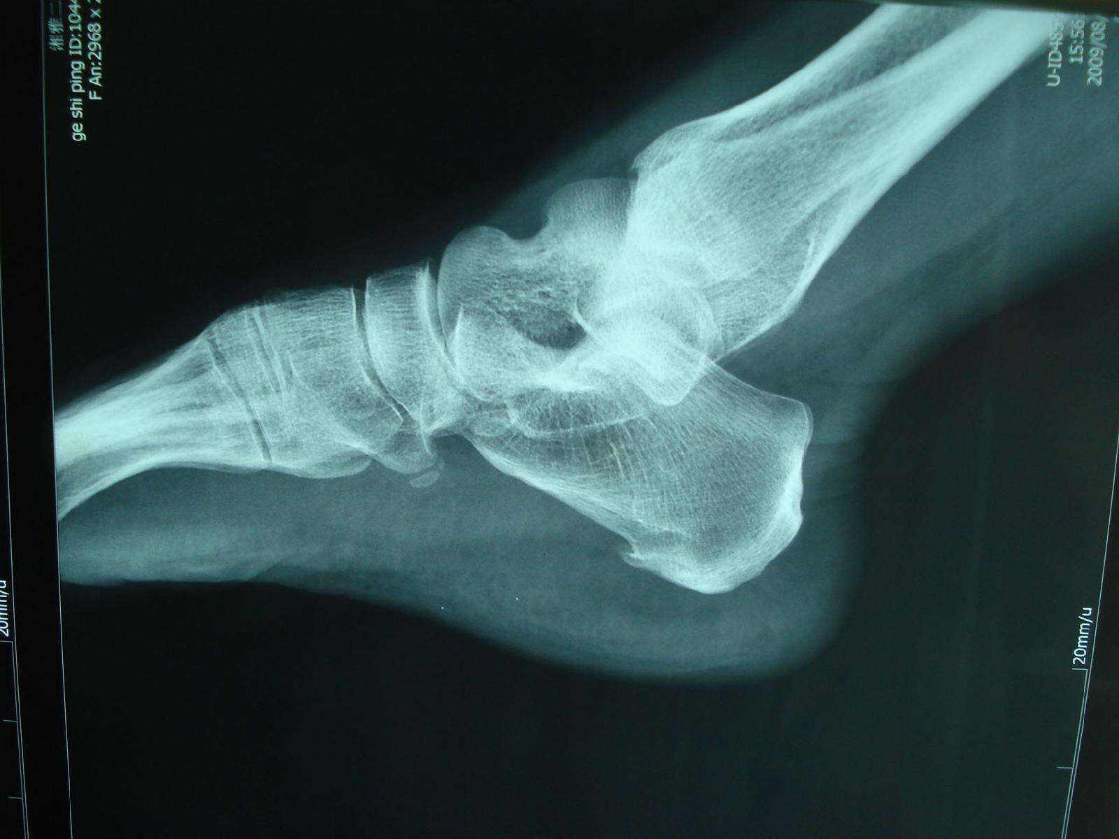 原创狐大医|膝盖长了骨刺,吃药、按摩能化掉吗?