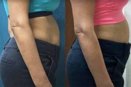 53岁大妈又来跳绳减肥,每天跳绳5000下,5周后看减肥效果
