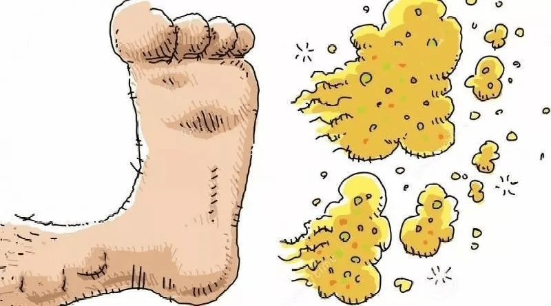 妇科炎症反复发作竟是脚气引起的,生活用品抗菌可改善excuse me