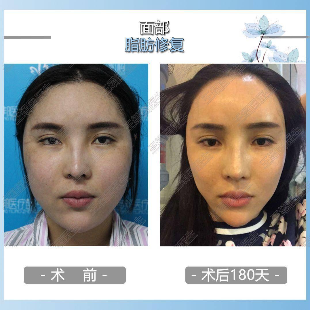 面部填充脂肪对比照片