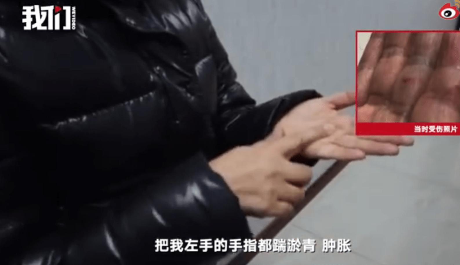张培萌岳母:我被打趴在地 眼瞅着孙女被他抱走