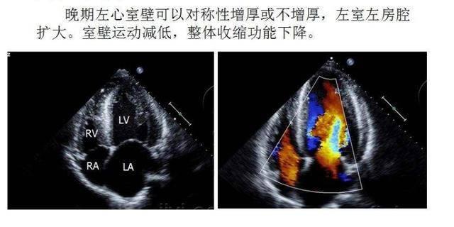体检发现血压高,接下来要怎么办?