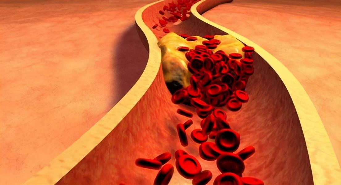 一家三口血脂水平都升高,营养师:这3种食物吃多了还会损伤血管