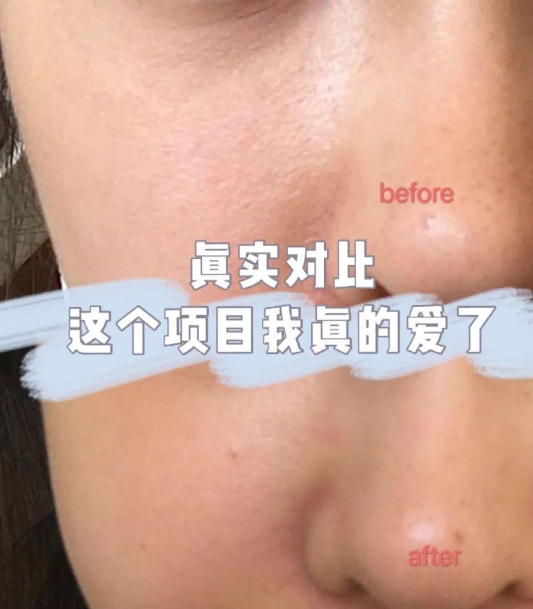 皮肤管理迫在眉睫!微针、果酸、光子成为护肤届三巨头?