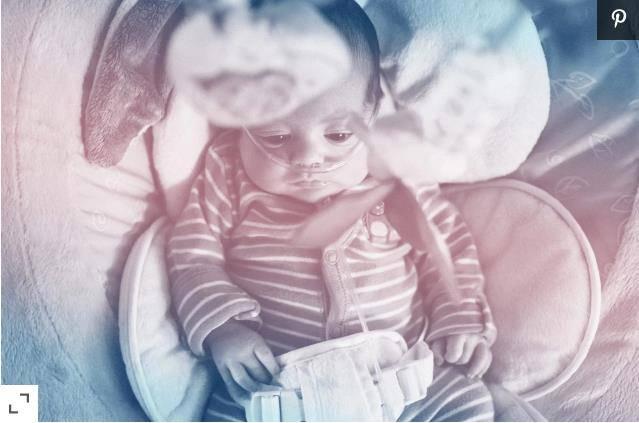 婴儿的RSV:父母需要知道的一切