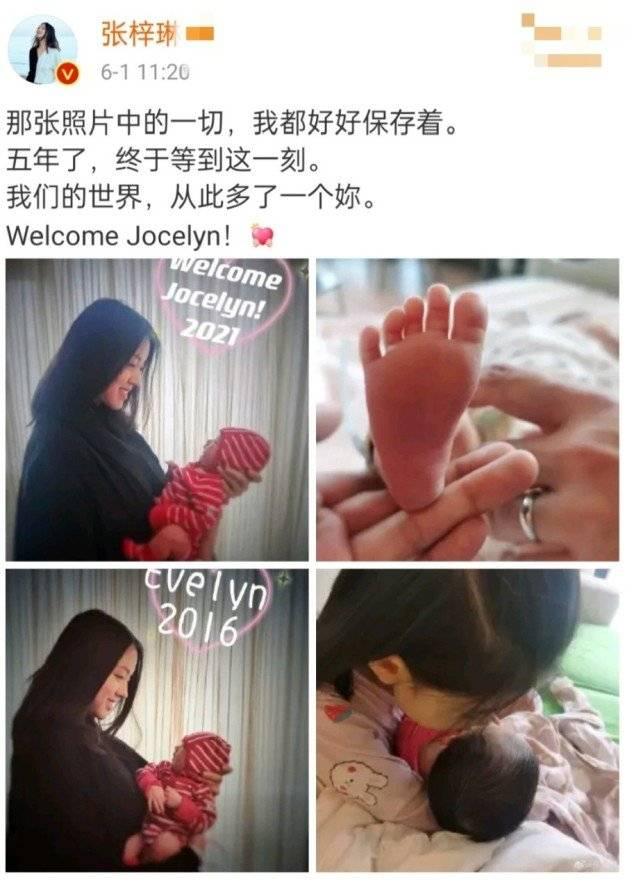 张梓琳官宣二胎生女,妹妹头发乌黑茂密,为啥很多新生儿头发不好