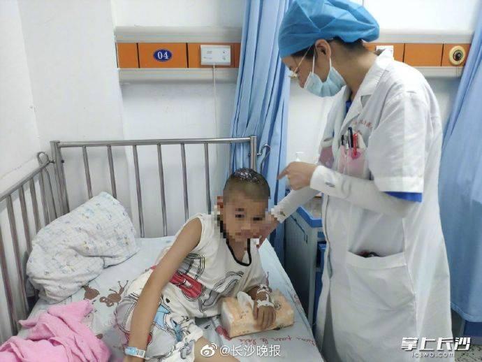 长沙6岁女孩头顶脱发溃烂,愈后可能永久脱发,原因让人意想不到