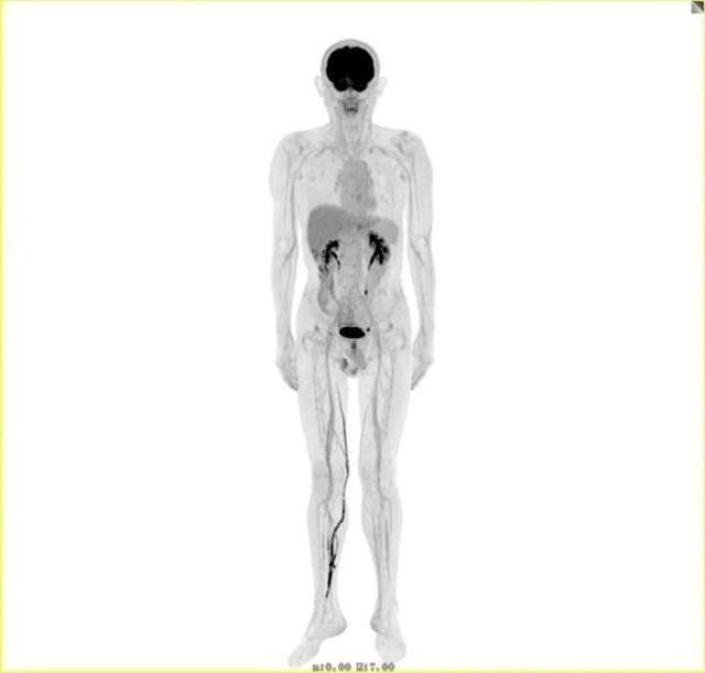 """不到3毫米的肿瘤都能发现!浦东首台""""人体哈勃望远镜""""落户仁济"""