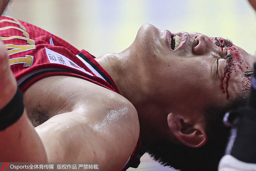 姜宇星首节状态完美砍6分 眼部被打伤飙血伤退离场