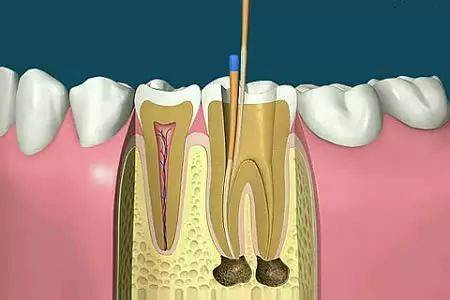 牙疼快速止疼偏方,只有这个办法才是真的好使 网络快讯 第5张