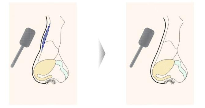 女人鼻子有驼峰好吗(女生鼻子有驼峰需要矫正吗)插图(3)