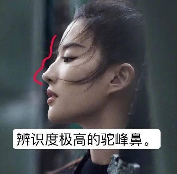 女人鼻子有驼峰好吗(女生鼻子有驼峰需要矫正吗)插图(1)
