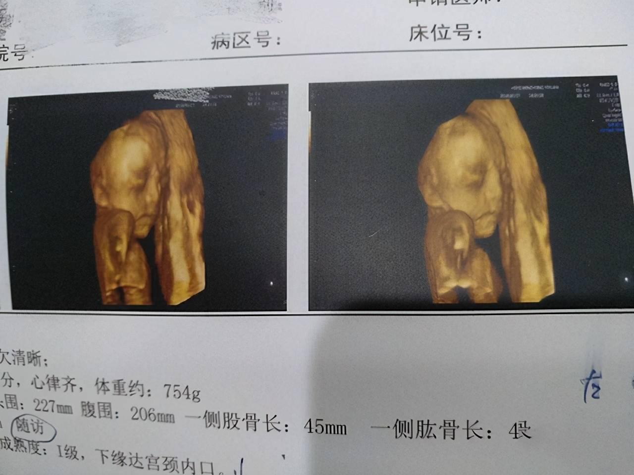 被宝宝的四维彩超照丑哭了?不是医生技术不好,而是有客观原因的