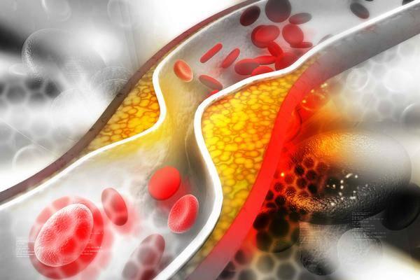 """血管健康人更长寿,冬季牢记""""3吃4不做"""",养好血管,远离血栓"""
