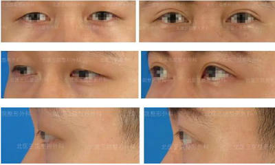男人也爱美——双眼皮效果分享