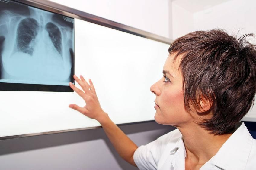 """肺癌的""""元凶""""找到了,医生提醒,远离肺癌,要做好这5点!"""