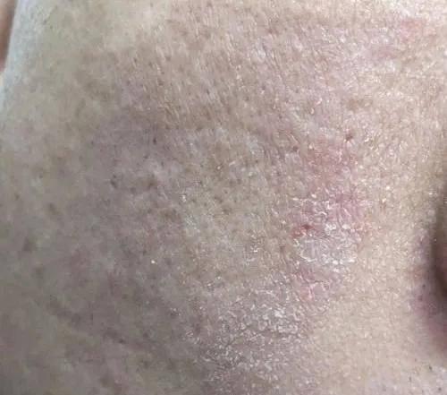皮肤管理师必学的皮肤类型知识|肌肤管理小助手