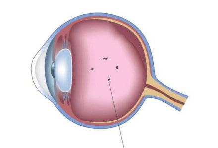 这四类眼疾信号,需要小心了!