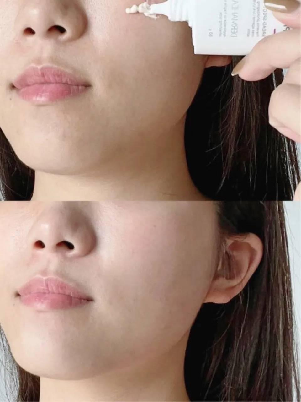 是什么被称为护肤界的天花板?