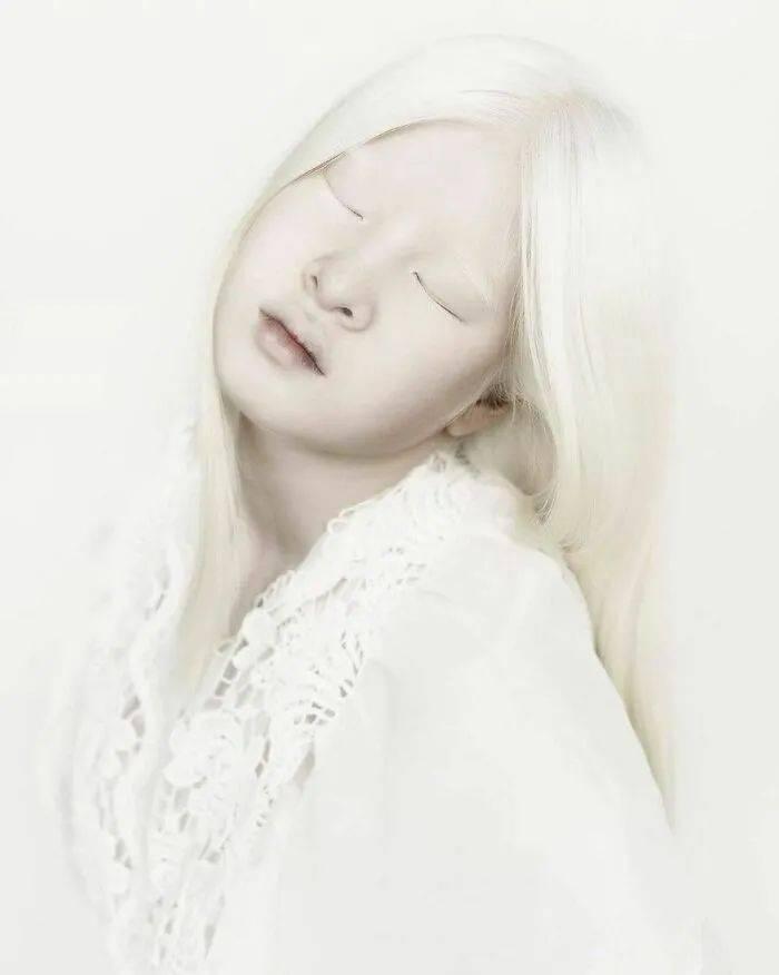 """因""""全身雪白""""被遗弃的中国女孩,逆袭成超模的故事让人泪目"""