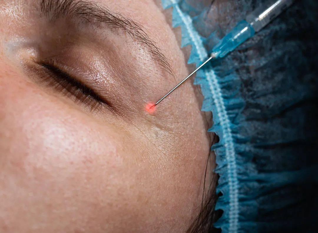 吓人!20岁女子去美容院注射玻尿酸,结果眼睛瞎了!