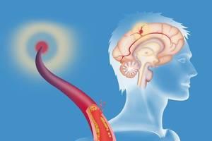 """腦血栓發生前,會發出7個""""求助""""訊號!其中有3個,很容易看出來"""