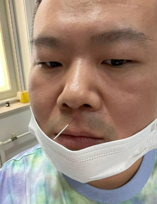 岳云鹏扎针灸晒照 画面搞笑却被医生嘱咐不许笑