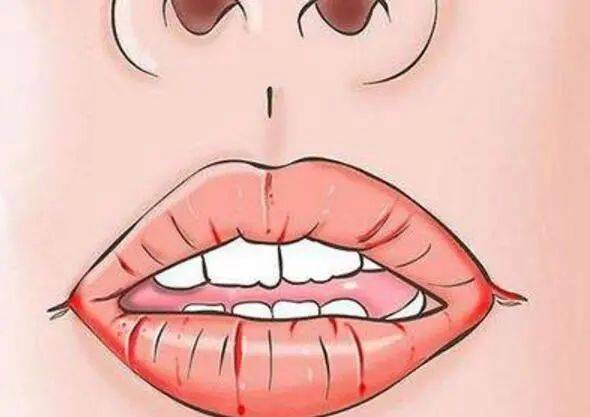美肌||应对口罩带来的肌肤困扰,最全解答在这!